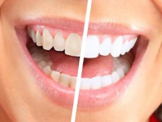 Same Day Teeth Whitening Zoom